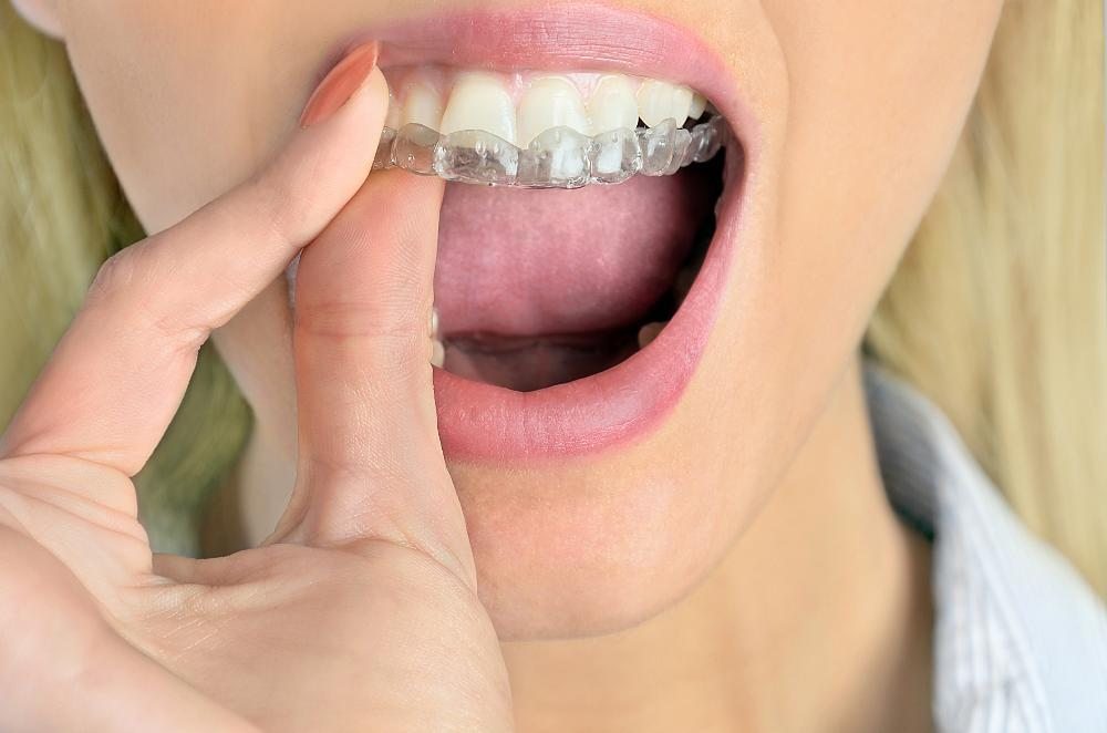 Photo of teen with invisalign braces | invisalign in Northborough MA | Braces for teens