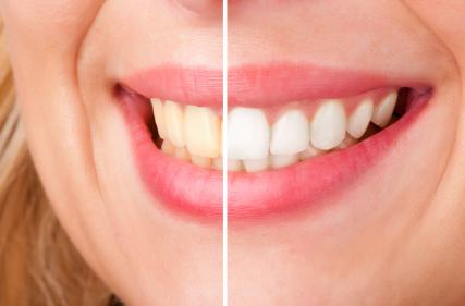 teeth whitening in northborough ma